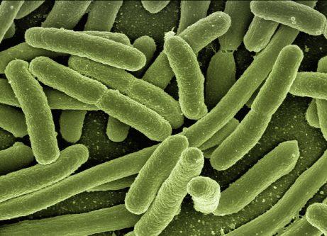Bakterie – infekční průjem